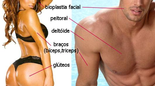 bioplastia no corpo: face, braços e bumbum