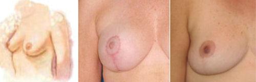 foto cicatriz de mamoplastia