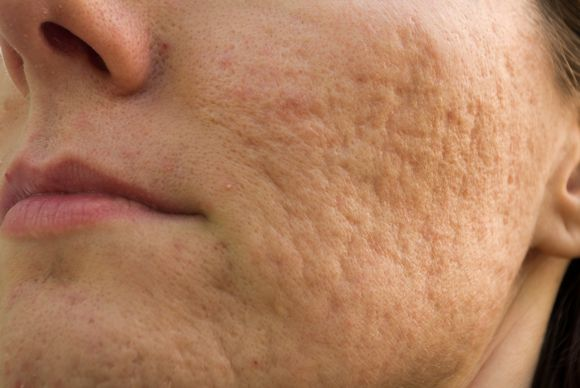 cicatrizes acne