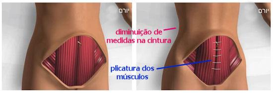 cirurgia abdominoplastia
