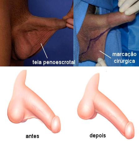 cirurgia aumento peniano