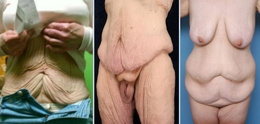 cirurgia bariatrica fotos