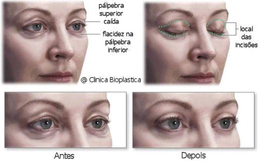 cirurgia plapebras : blefaroplastia