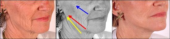 cirurgia plastica rosto