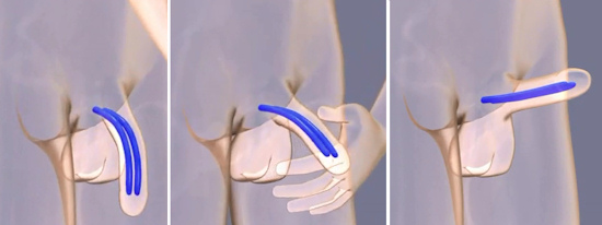 cirurgia protese peniana
