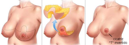 cirurgia redução mama