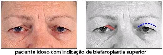 Círculos leves em olhos