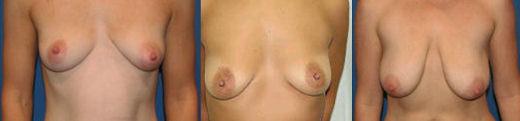 fotos cirurgia mama