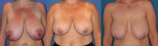 fotos mamoplastia redutora