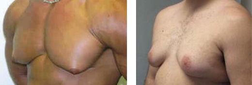 ginecomastia fotos antes e depois