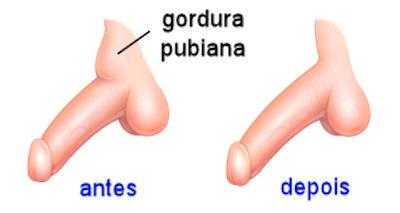 lipoaspiração pubiana