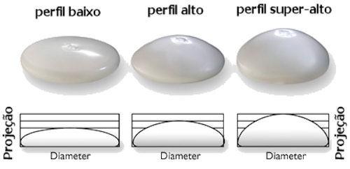 protese de silicone nos seios : tamanho ideal