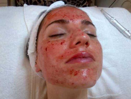 tratamento cicatrizes de acne