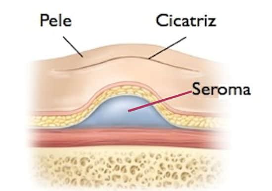 seroma