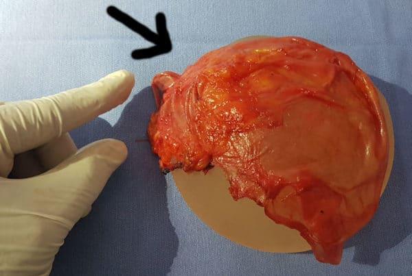 contratura capsular protese de silicone